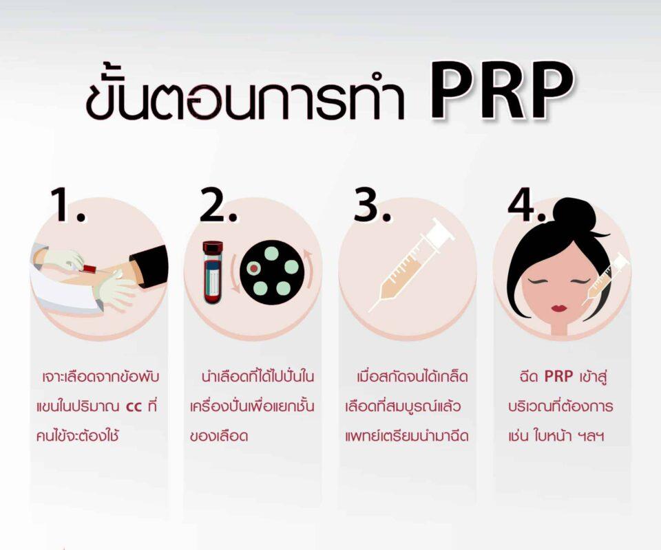 ขั้นตอนการทำ PRP