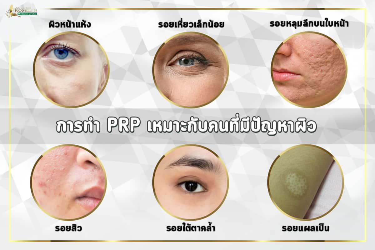 PRP ดูเเลอย่างไร